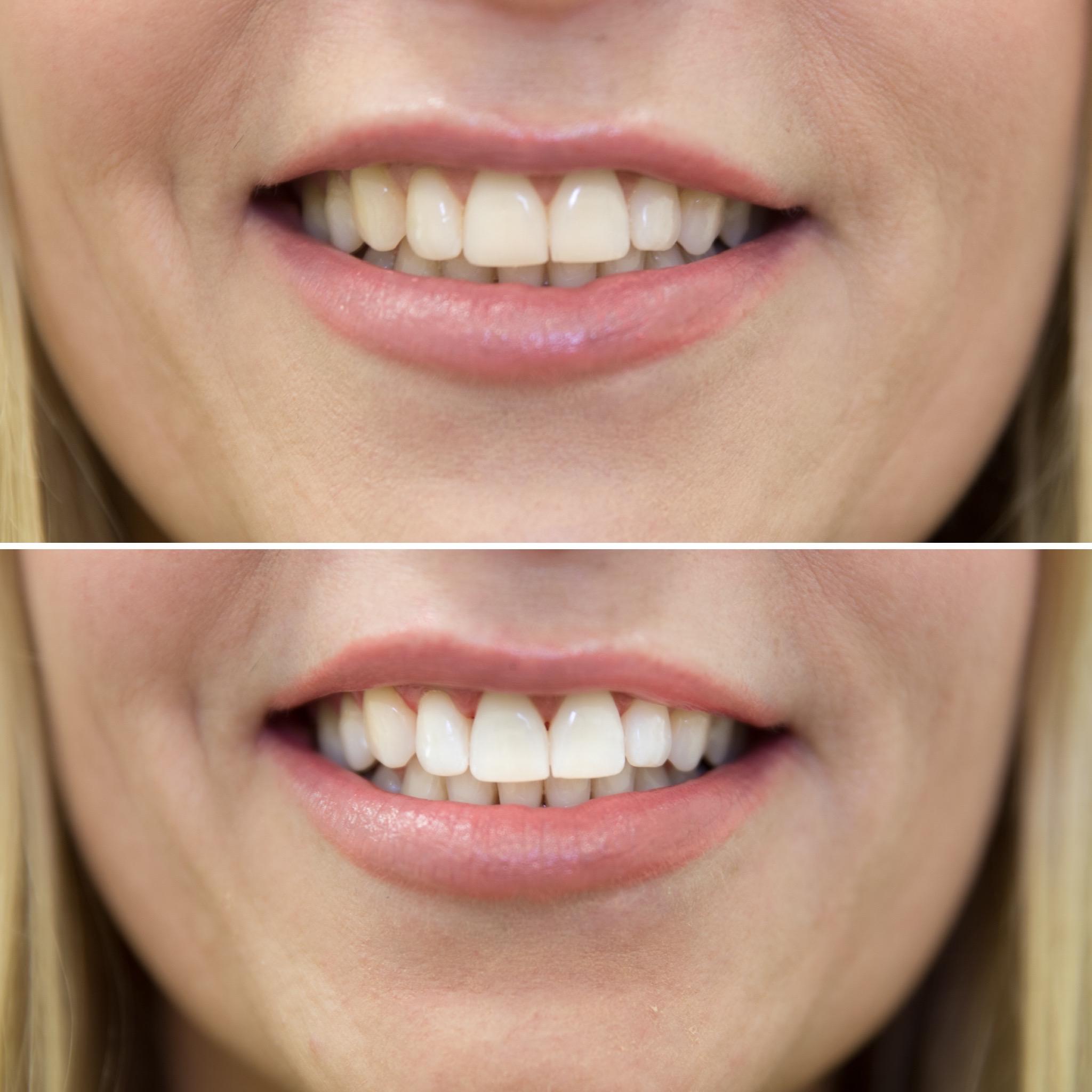 Zähne Bleaching Vorher Nachher